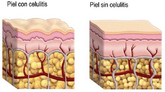 Qué es la celulitis o piel naranja
