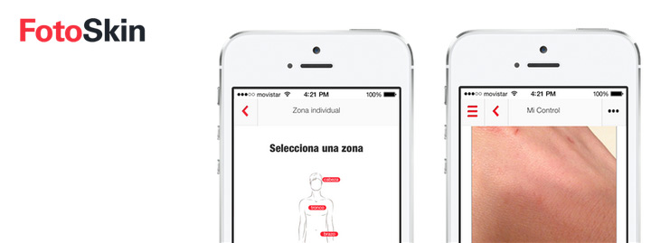 Pantallazos de la app FotoSkin para la prevención y diagnóstico del cáncer de piel