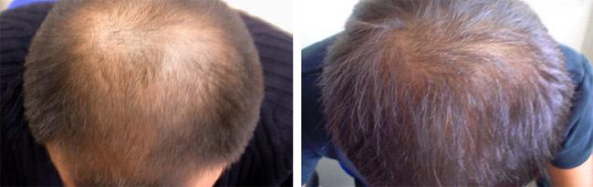 recuperar-pelo-tratamiento